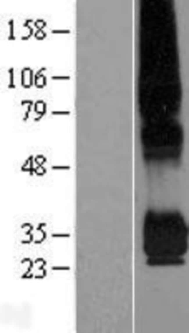 Novus Biologicals PPAP2C Overexpression Lysate (Native) 0.1mg:Life Sciences