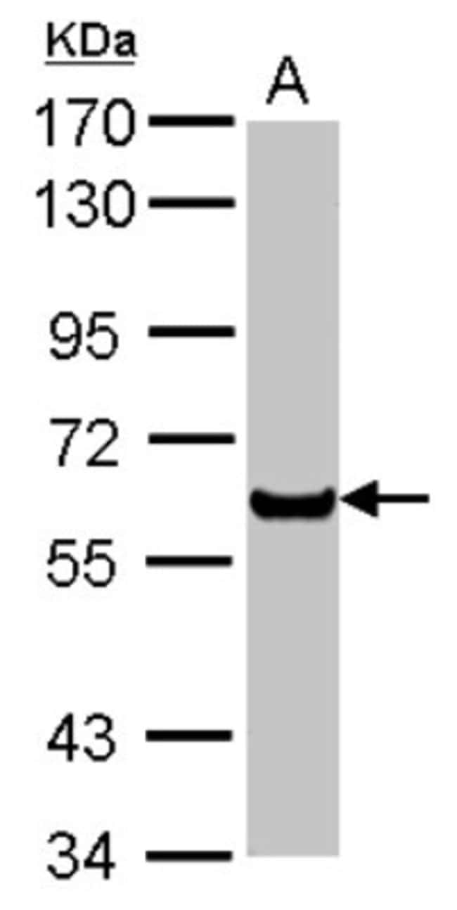 anti-PPAR alpha/NR1C1, Polyclonal, Novus Biologicals 0.1mL; Unlabeled:Life