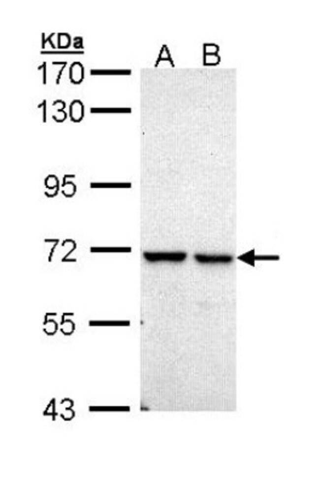 anti-PPIL2, Polyclonal, Novus Biologicals 0.1mL; Unlabeled:Life Sciences