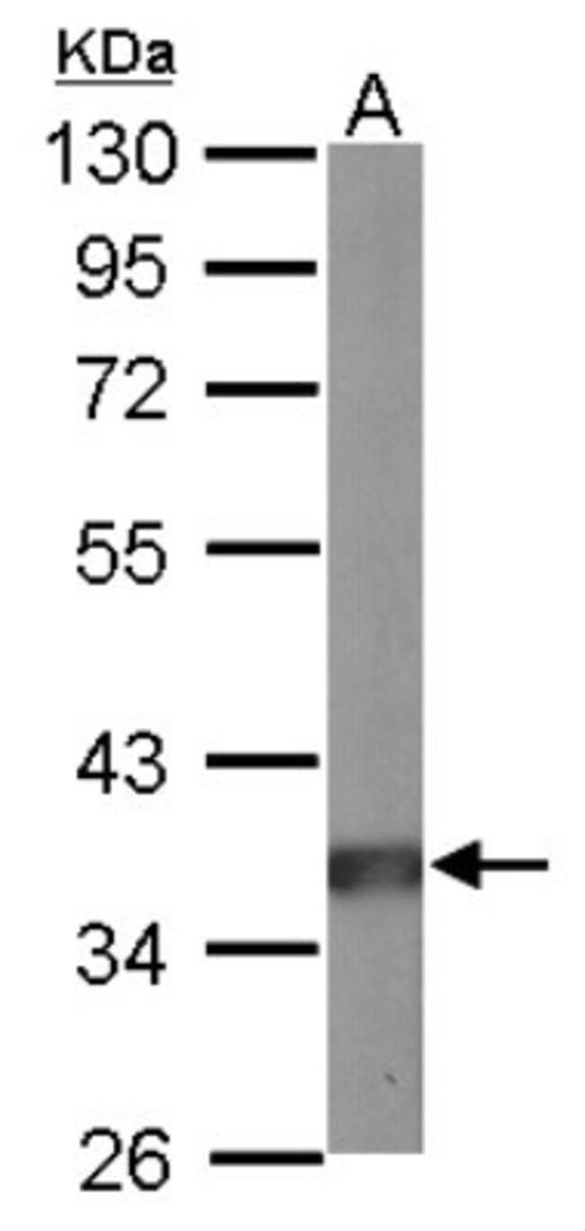 anti-PP2A/PPP2R4, Polyclonal, Novus Biologicals 0.1mL; Unlabeled:Life Sciences