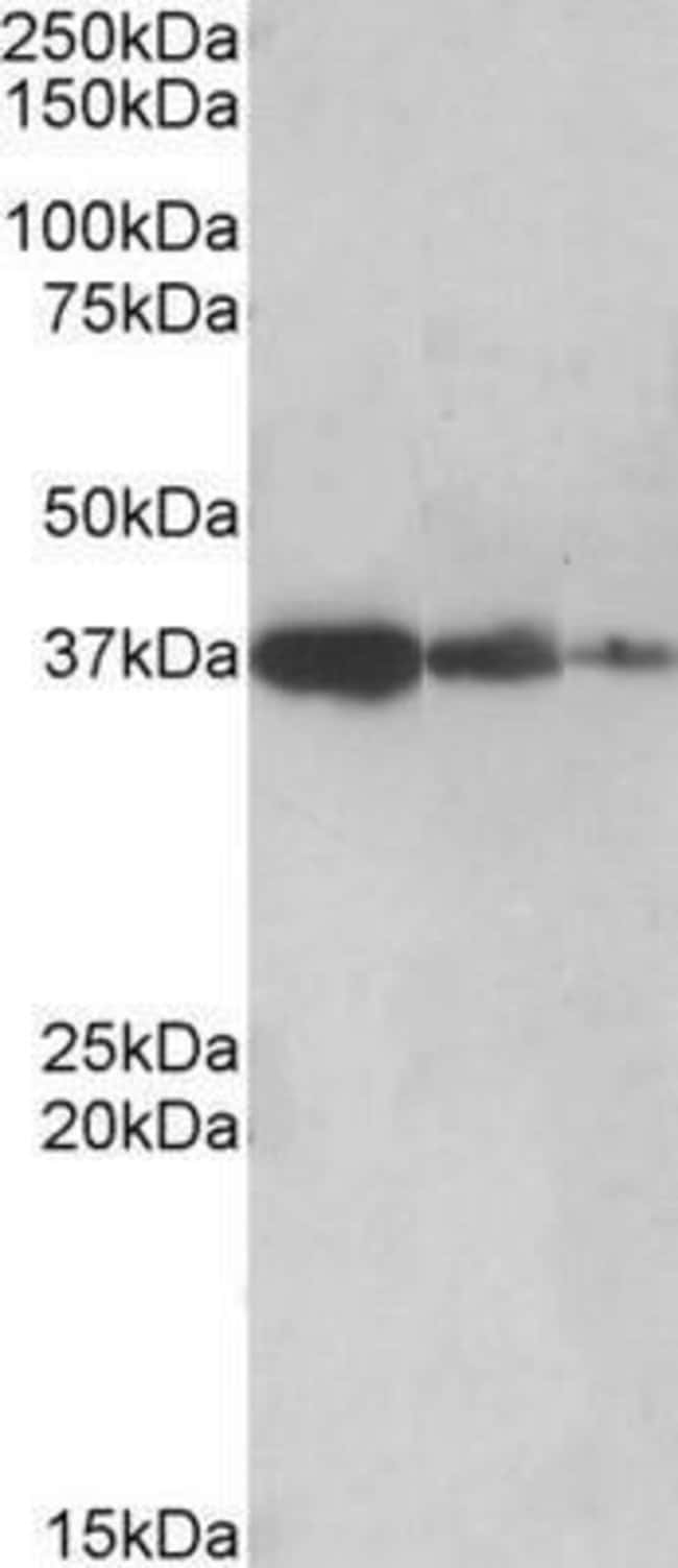 anti-PP2A/PPP2R4, Polyclonal, Novus Biologicals 0.1mg; Unlabeled:Life Sciences