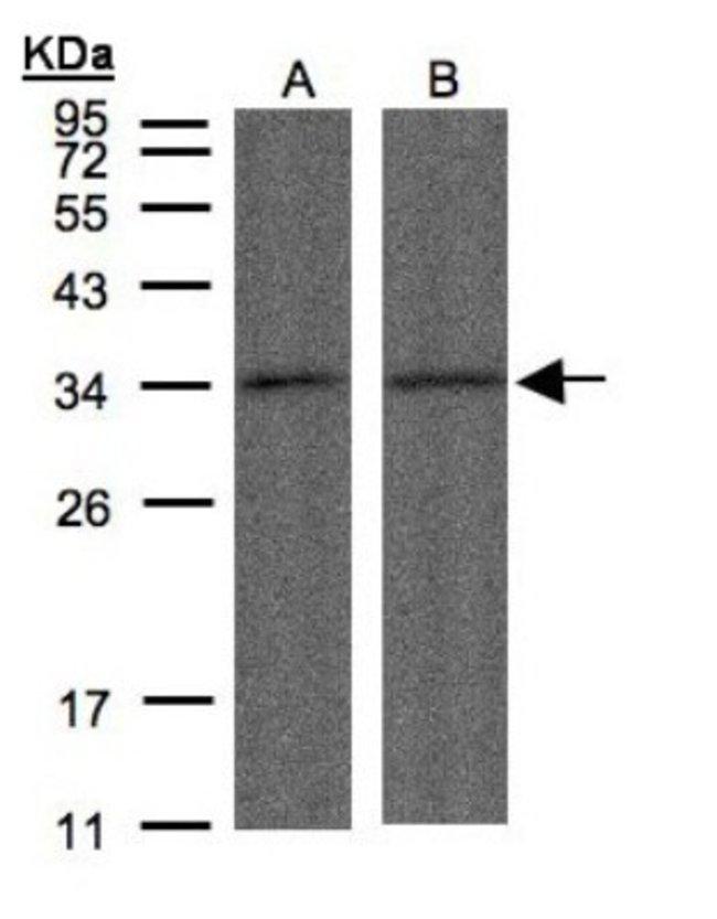 anti-PPP4C, Polyclonal, Novus Biologicals 0.1mL; Unlabeled:Life Sciences