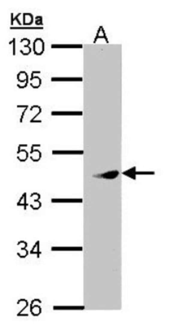 anti-PRAK, Polyclonal, Novus Biologicals 0.1mL; Unlabeled:Antibodies