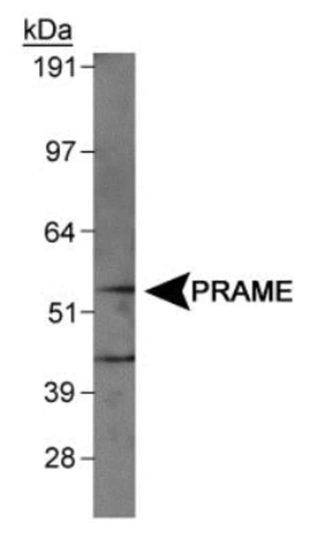 anti-PRAME, Polyclonal, Novus Biologicals:Antibodies:Primary Antibodies