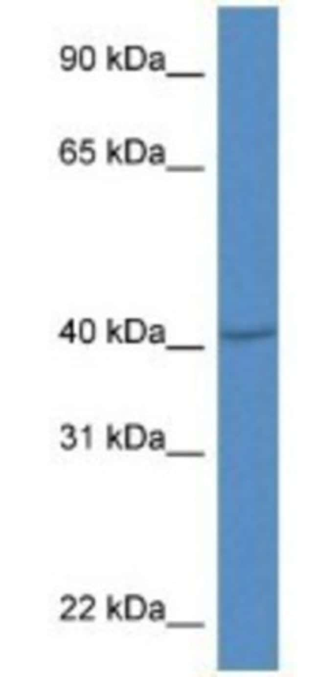 PRDM12 Rabbit anti-Mouse, Polyclonal, Novus Biologicals 100µL; Unlabeled:Life