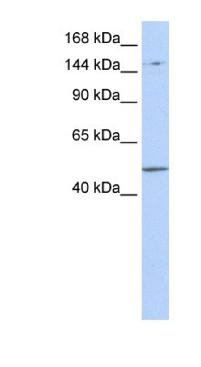 PRDM15 Rabbit anti-Human, Polyclonal, Novus Biologicals 100µL; Unlabeled:Life