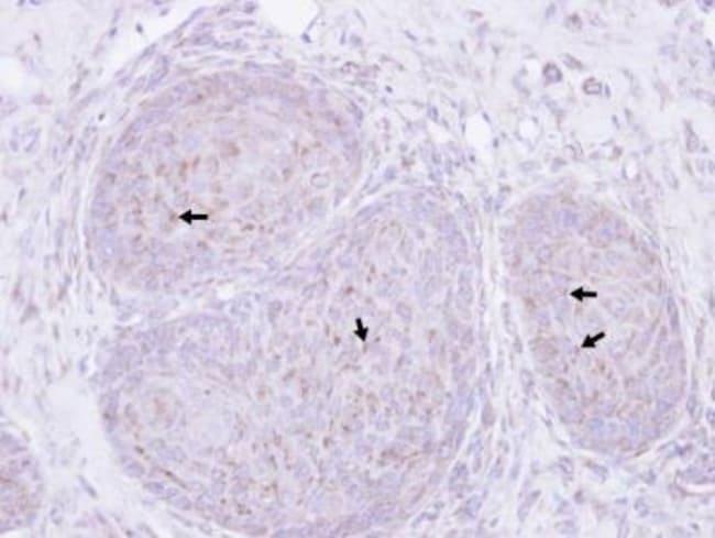 anti-Presenilin-1, Polyclonal, Novus Biologicals 0.1mL; Unlabeled:Antibodies