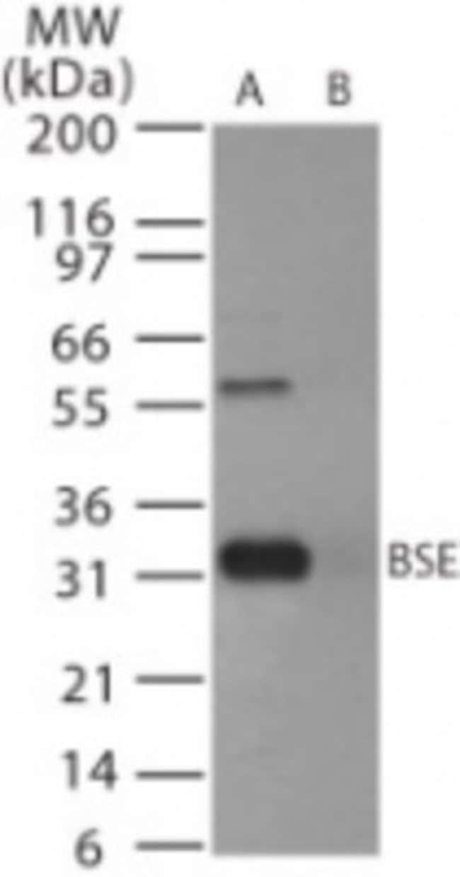 anti-Prion protein, Polyclonal, Novus Biologicals:Antibodies:Primary Antibodies