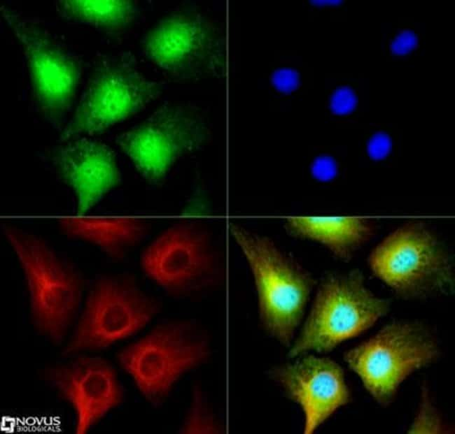 anti-PRMT2, Polyclonal, Novus Biologicals:Antibodies:Primary Antibodies