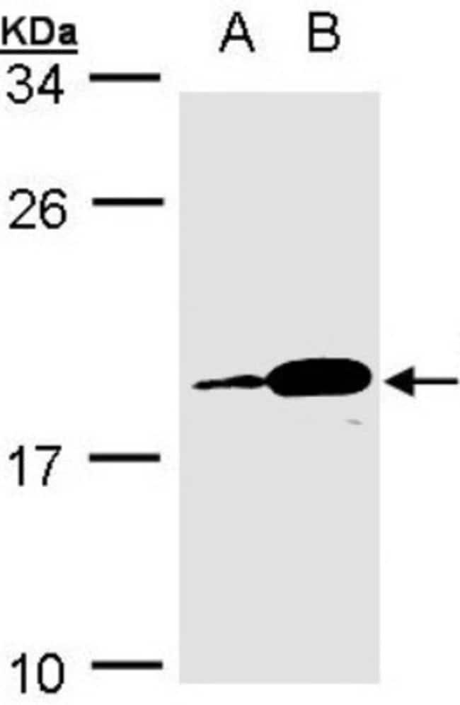 anti-Proapoptotic Caspase Adaptor Protein, Polyclonal, Novus Biologicals