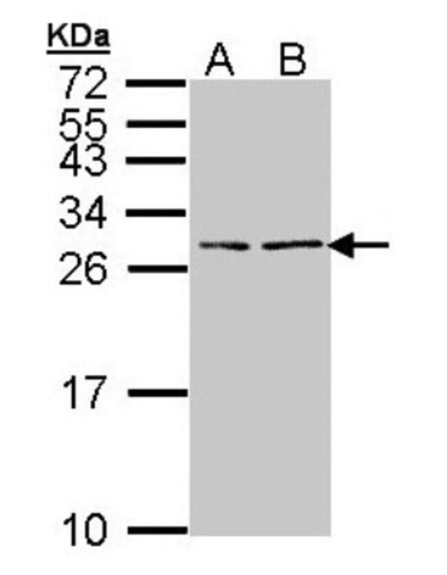 BNP Rabbit anti-Human, Polyclonal, Novus Biologicals 0.1mg; Unlabeled:Antibodies