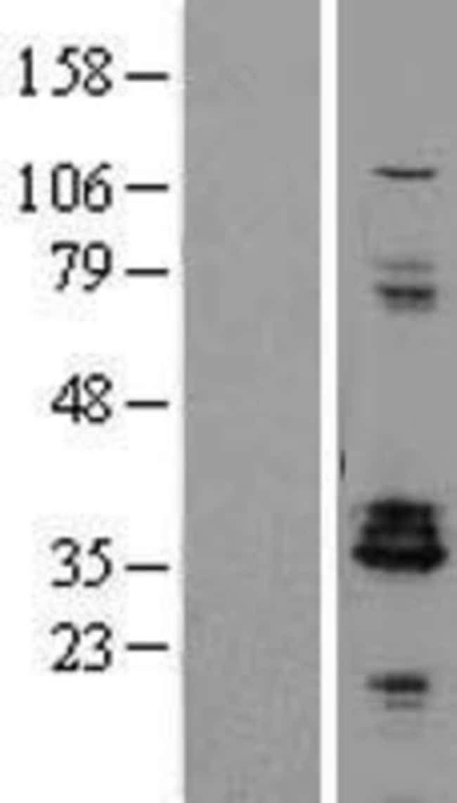 Novus BiologicalsProenkephalin Overexpression Lysate (Native) 0.1mg:Protein