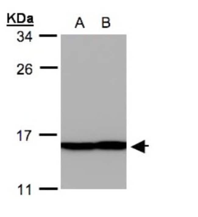 anti-Profilin 2, Polyclonal, Novus Biologicals 0.1mg; Unlabeled:Life Sciences
