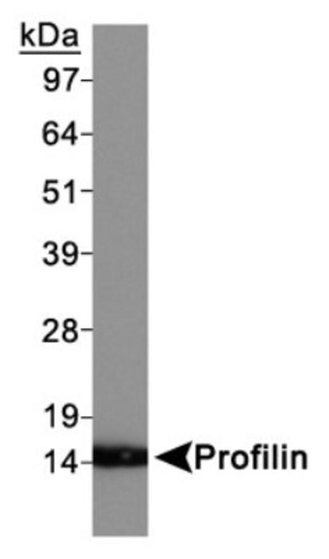 anti-Profilin 1, Polyclonal, Novus Biologicals:Antibodies:Primary Antibodies