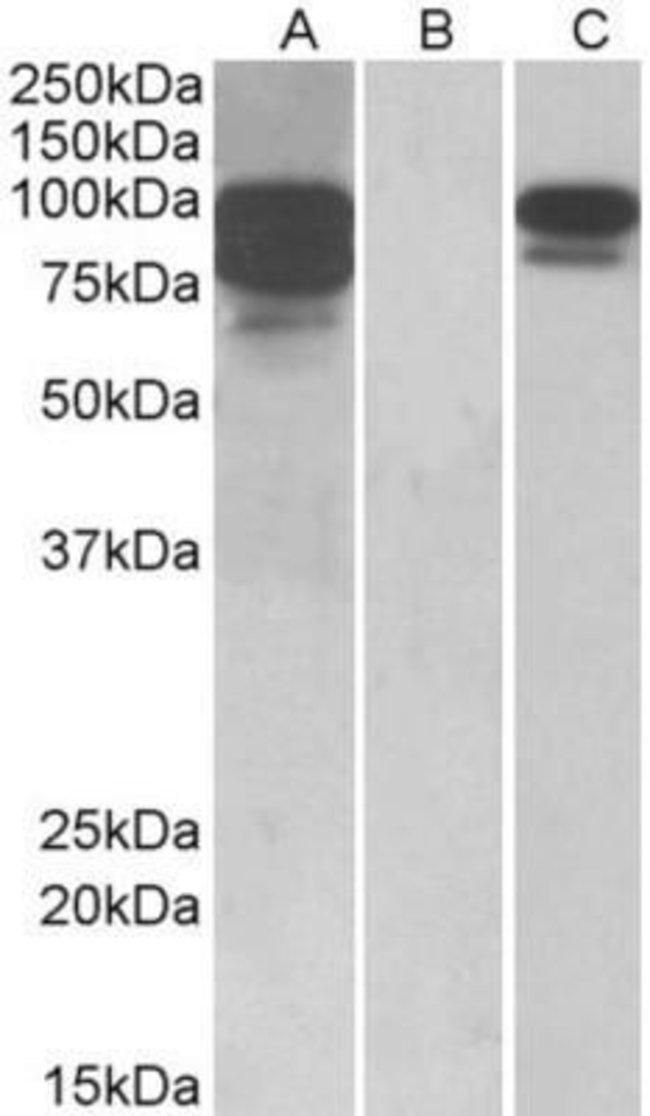 anti-Proprotein Convertase 9/PCSK9, Polyclonal, Novus Biologicals 0.1mg;