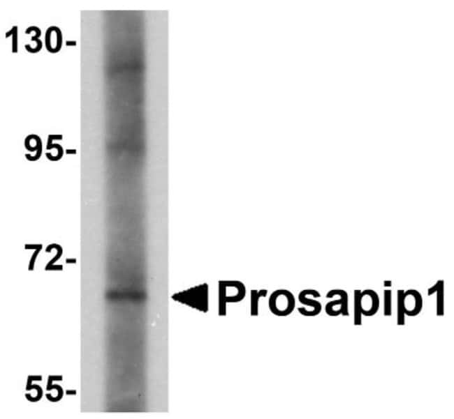 anti-ProSAPiP1, Polyclonal, Novus Biologicals 0.1mg; Unlabeled:Life Sciences