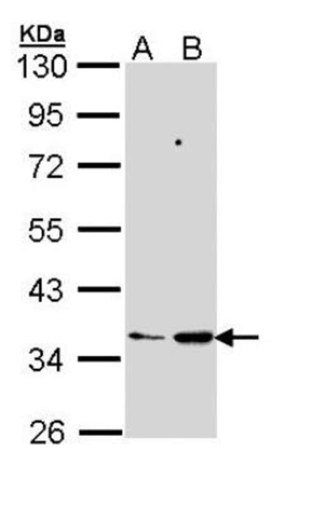 anti-Prostaglandin E Synthase 2/PTGES2, Polyclonal, Novus Biologicals 0.1mL;