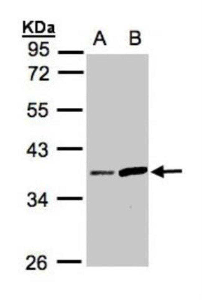 anti-Prostasin/Prss8, Polyclonal, Novus Biologicals 0.1mg; Unlabeled:Life