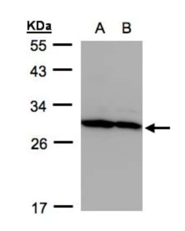 anti-Proteasome 20S alpha 5, Polyclonal, Novus Biologicals 0.1mL; Unlabeled:Life