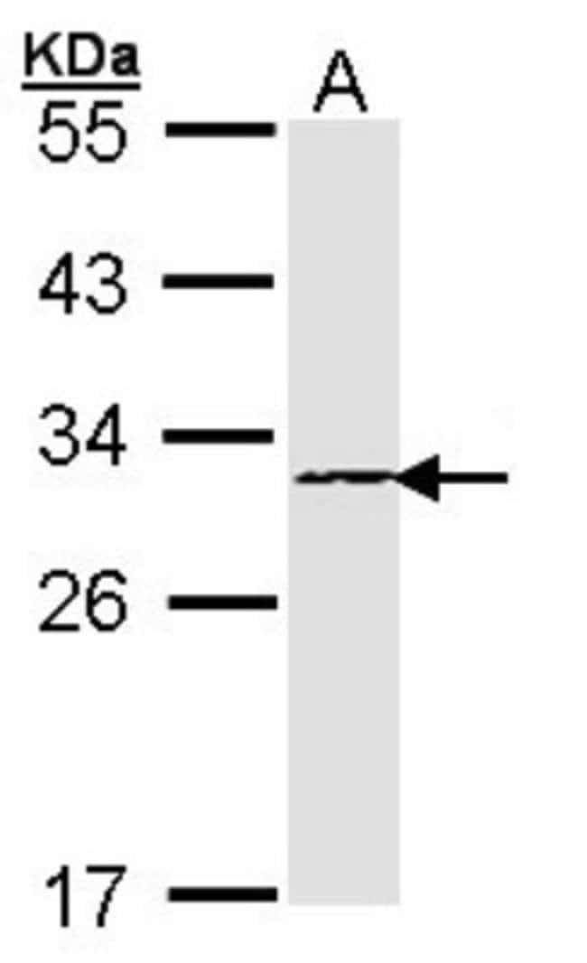 anti-Proteasome subunit beta type 4, Polyclonal, Novus Biologicals 0.1mL;