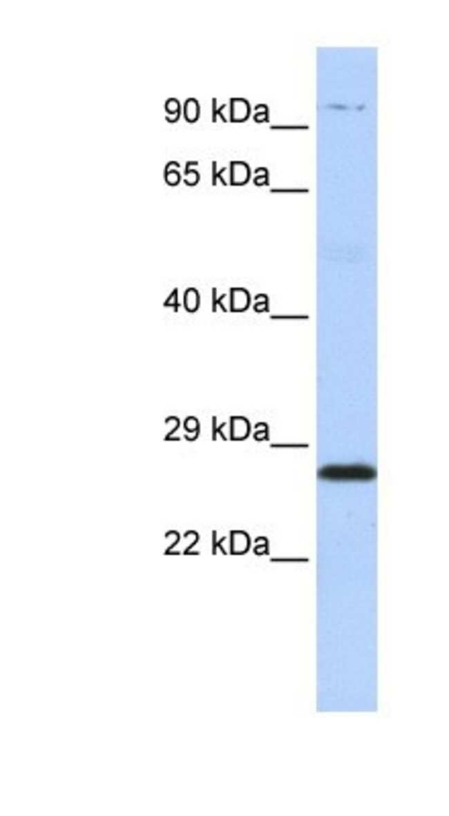Proteasome subunit beta type 4 Rabbit anti-Human, Rat, Polyclonal, Novus