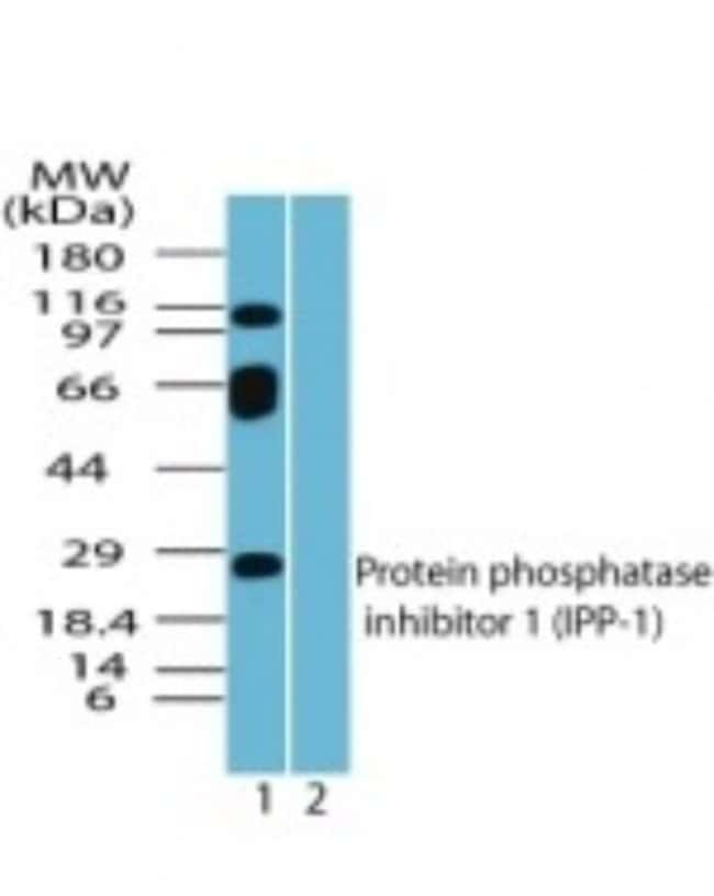 anti-Protein Phosphatase inhibitor 1, Polyclonal, Novus Biologicals:Antibodies:Primary