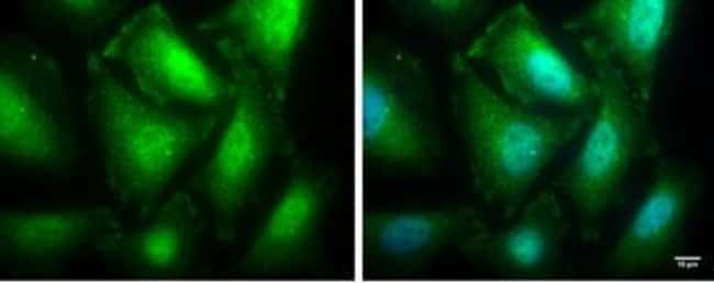 anti-Protein Phosphatase 1 beta, Polyclonal, Novus Biologicals 0.1mL; Unlabeled:Antibodies