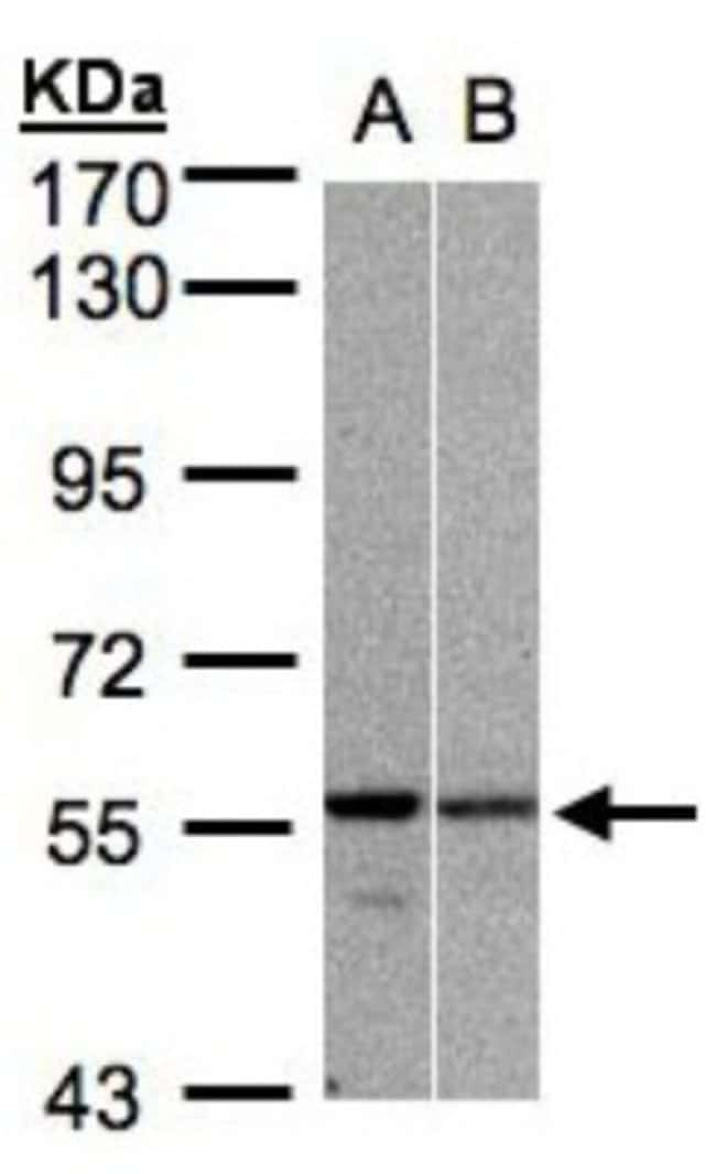 anti-PRP19, Polyclonal, Novus Biologicals 0.1mL; Unlabeled:Antibodies