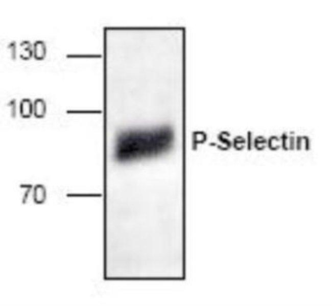 anti-P-Selectin/CD62P, Polyclonal, Novus Biologicals 0.1mg; Unlabeled:Life