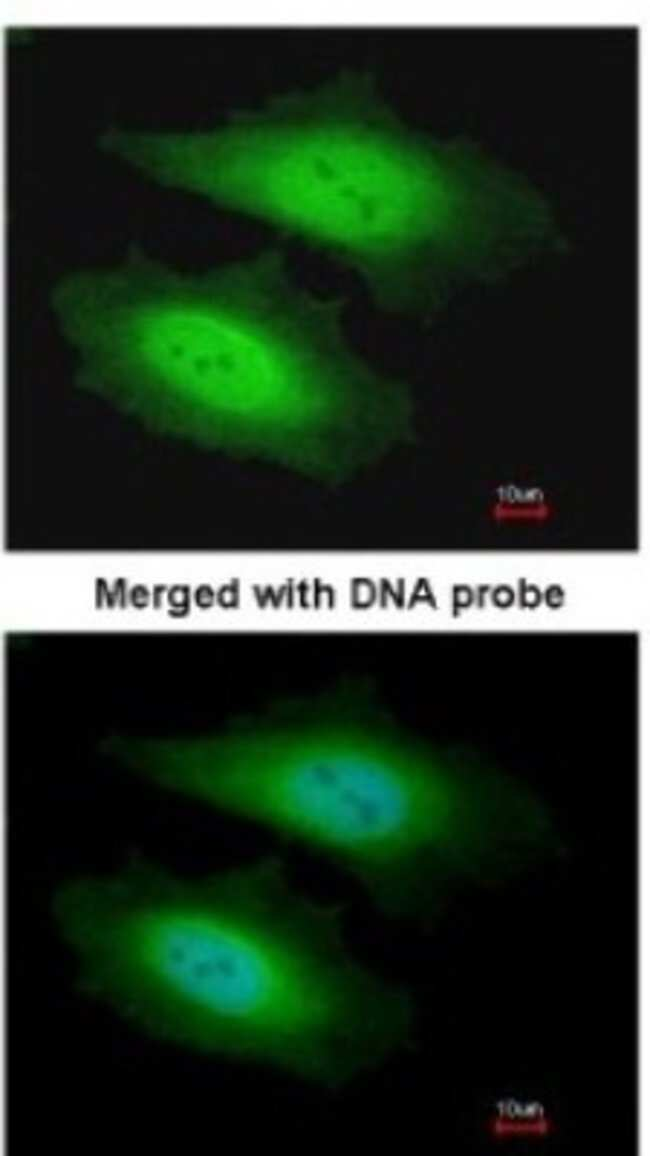 anti-PSKH1, Polyclonal, Novus Biologicals 0.1mL; Unlabeled:Life Sciences