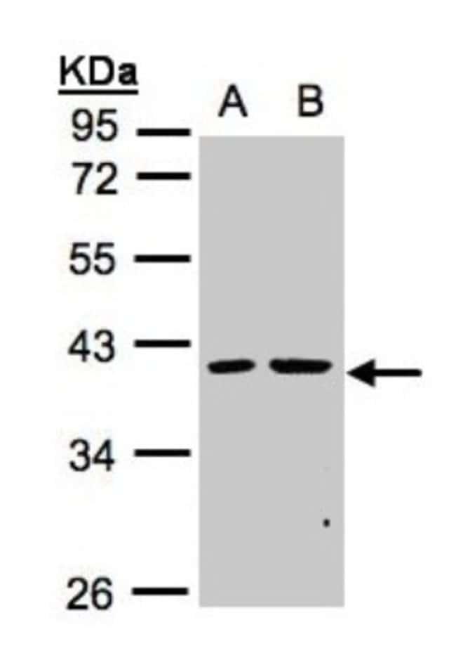 anti-PSKH2, Polyclonal, Novus Biologicals 0.1mg; Unlabeled:Life Sciences