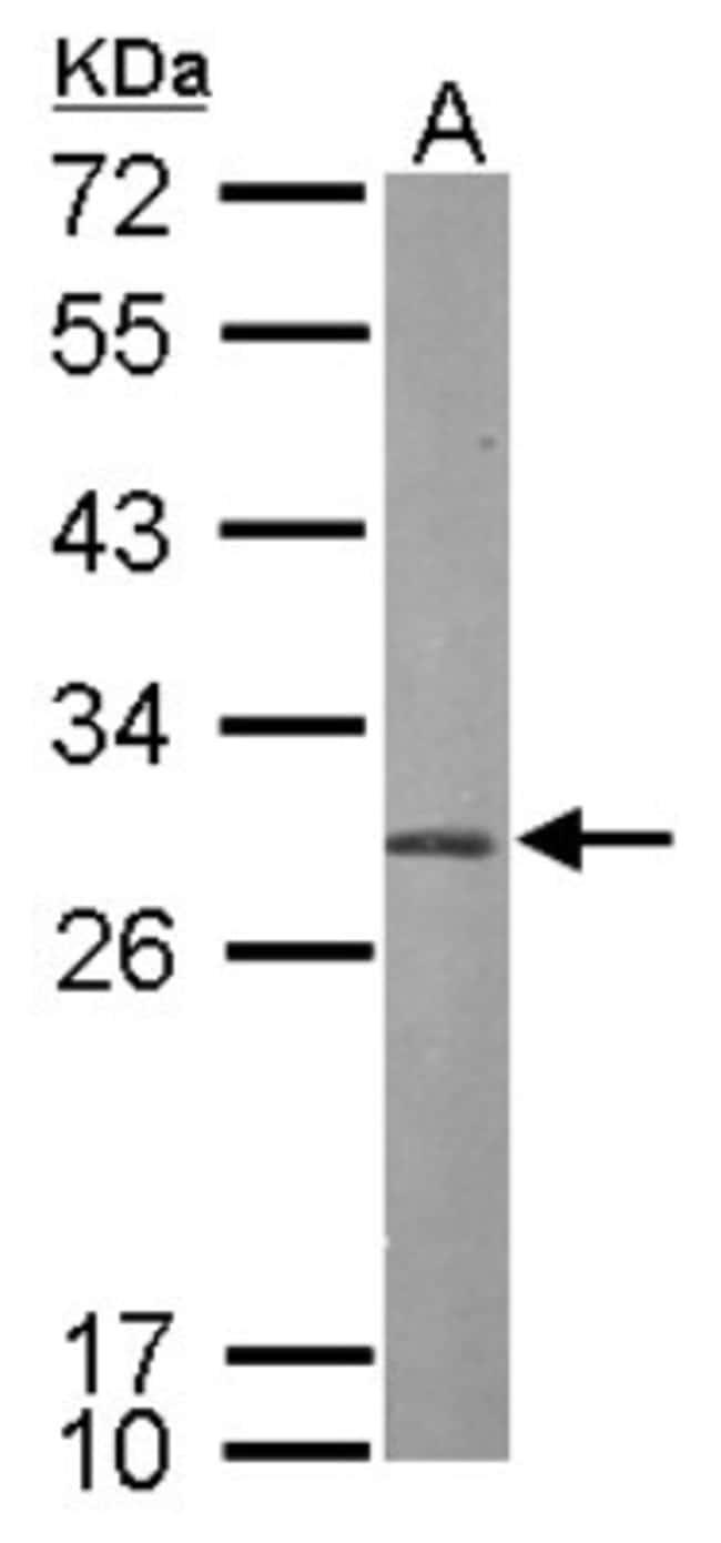 anti-PSMA7, Polyclonal, Novus Biologicals 0.1mL; Unlabeled:Life Sciences