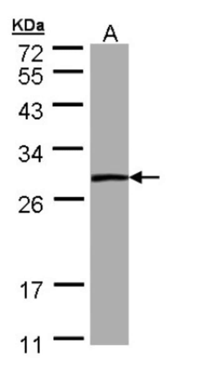 anti-PSPHL, Polyclonal, Novus Biologicals 0.1mg; Unlabeled:Life Sciences