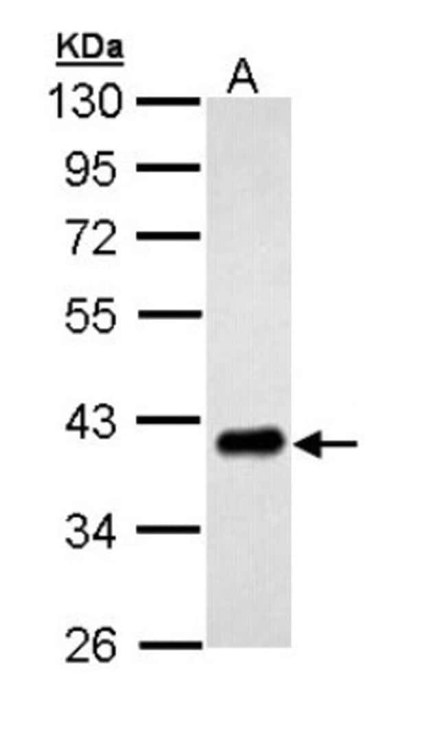 anti-PTK9, Polyclonal, Novus Biologicals 0.1mg; Unlabeled:Antibodies