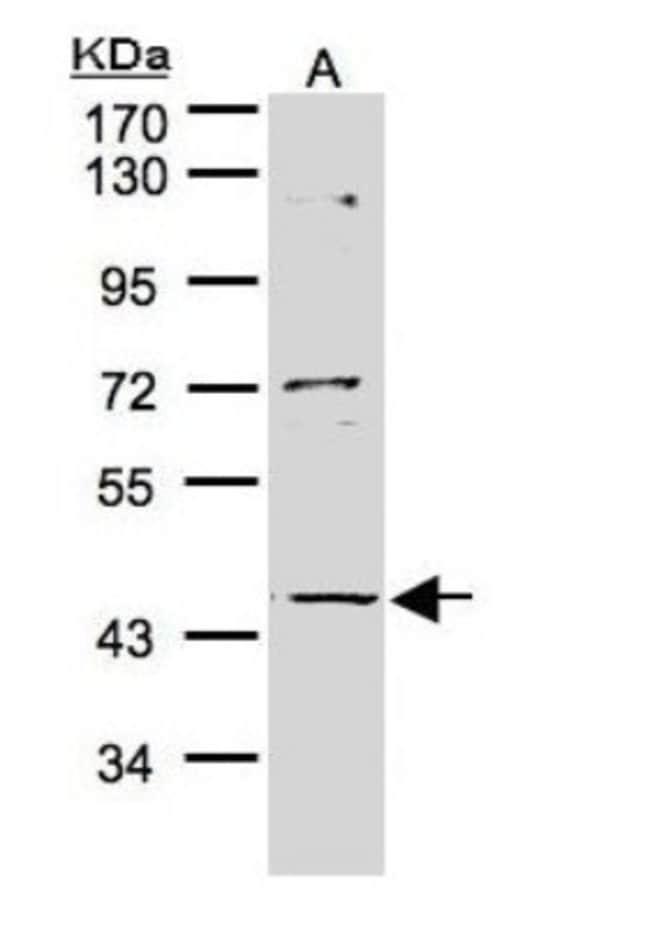 anti-PTOP, Polyclonal, Novus Biologicals 0.1mL; Unlabeled:Antibodies