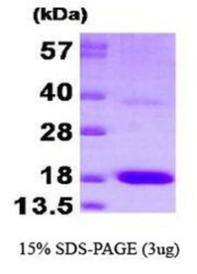 Novus Biologicals Human PTS Protein 0.1mg; Unlabeled:Life Sciences