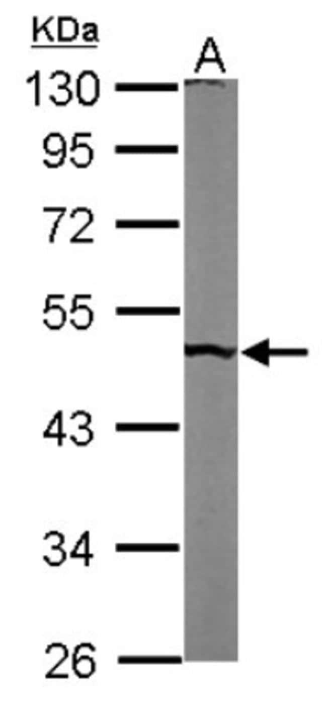 anti-PUS1, Polyclonal, Novus Biologicals 0.1mg; Unlabeled:Life Sciences