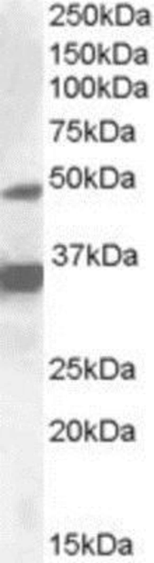 anti-PXR/NR1I2, Polyclonal, Novus Biologicals 0.1mg; Unlabeled:Life Sciences