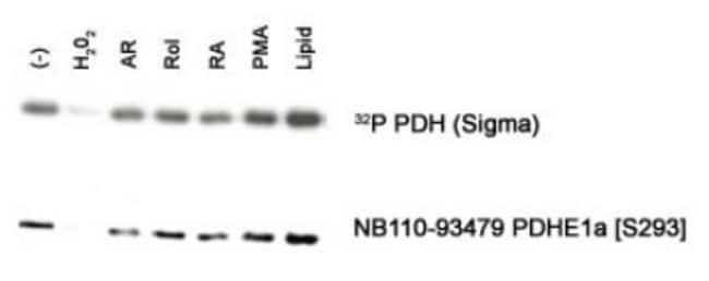 anti-Pyruvate Dehydrogenase E1-alpha subunit (p Ser293), Polyclonal, Novus