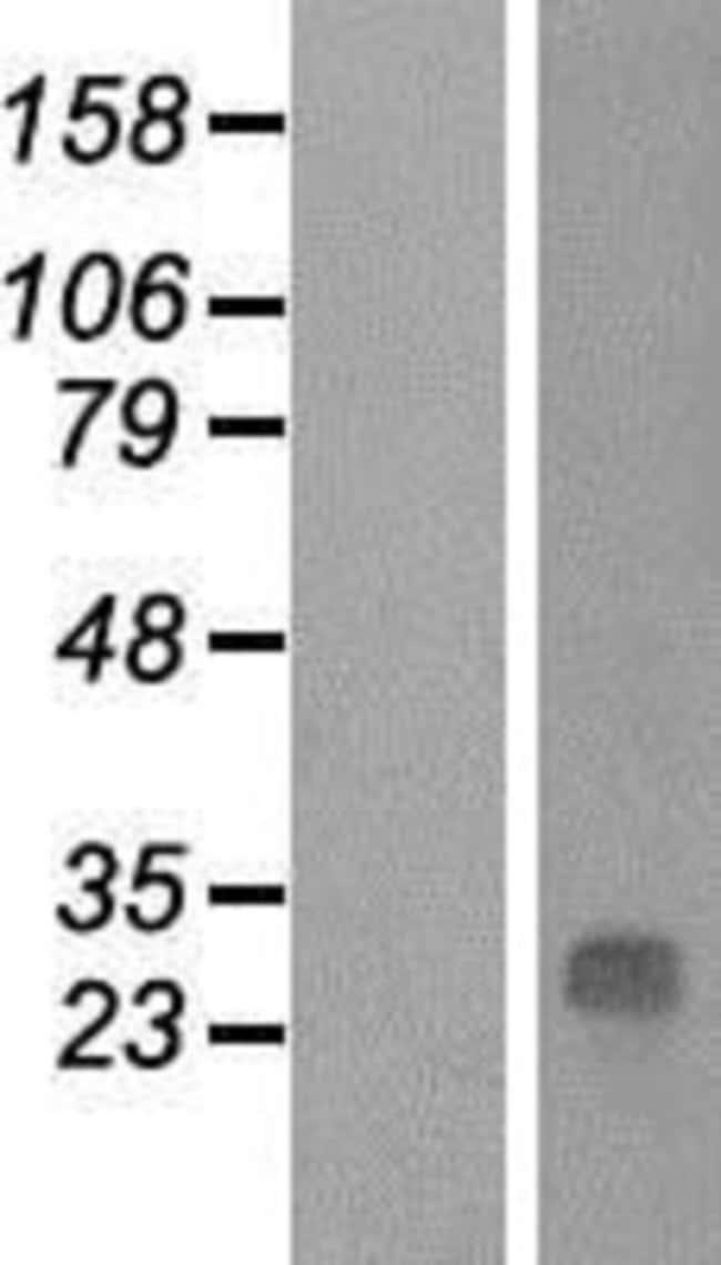 Novus BiologicalsQDPR Overexpression Lysate (Native) 0.1mg:Protein Analysis