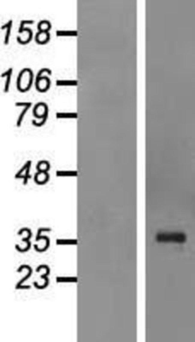 Novus BiologicalsQKI/Quaking Overexpression Lysate (Native) 0.1mg:Protein