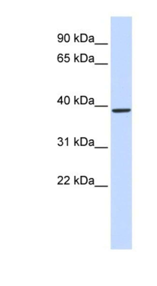Glutaminyl-peptide Cyclotransferase/QPCT Rabbit anti-Human, Mouse, Rat,