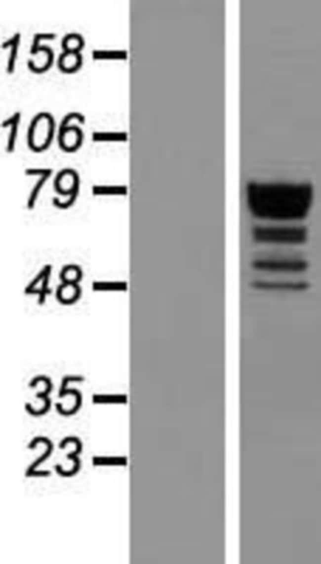 Novus BiologicalsQRICH1 Overexpression Lysate (Native) 0.1mg:Protein Analysis