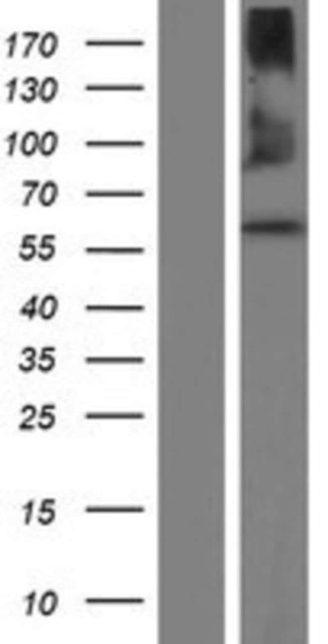 Novus BiologicalsQRSL Overexpression Lysate (Native) 0.1mg:Protein Analysis