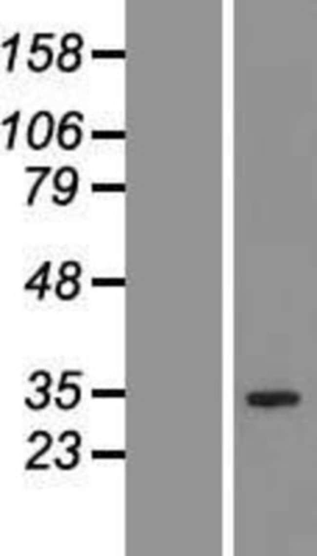 Novus BiologicalsQTRT1 Overexpression Lysate (Native) 0.1mg:Protein Analysis