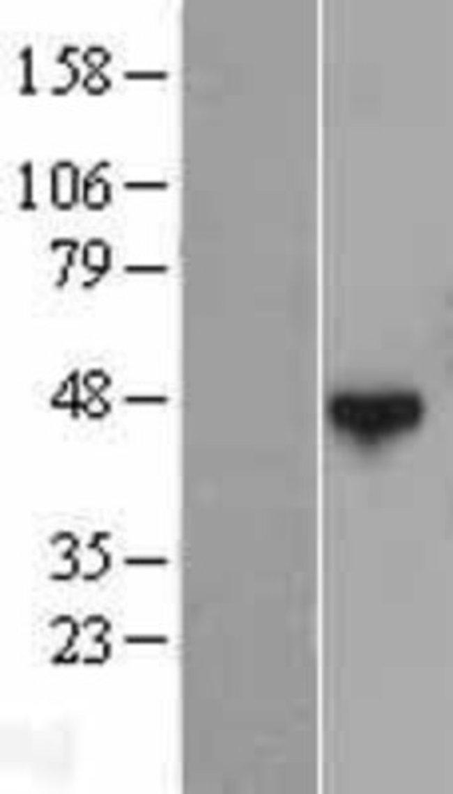 Novus BiologicalsQTRTD1 Overexpression Lysate (Native) 0.1mg:Protein Analysis