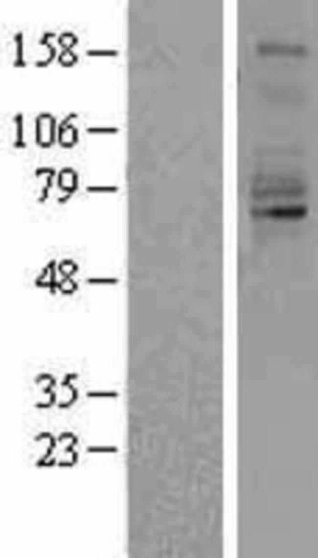 Novus BiologicalsQuiescin Q6 Overexpression Lysate (Native) 0.1mg:Protein