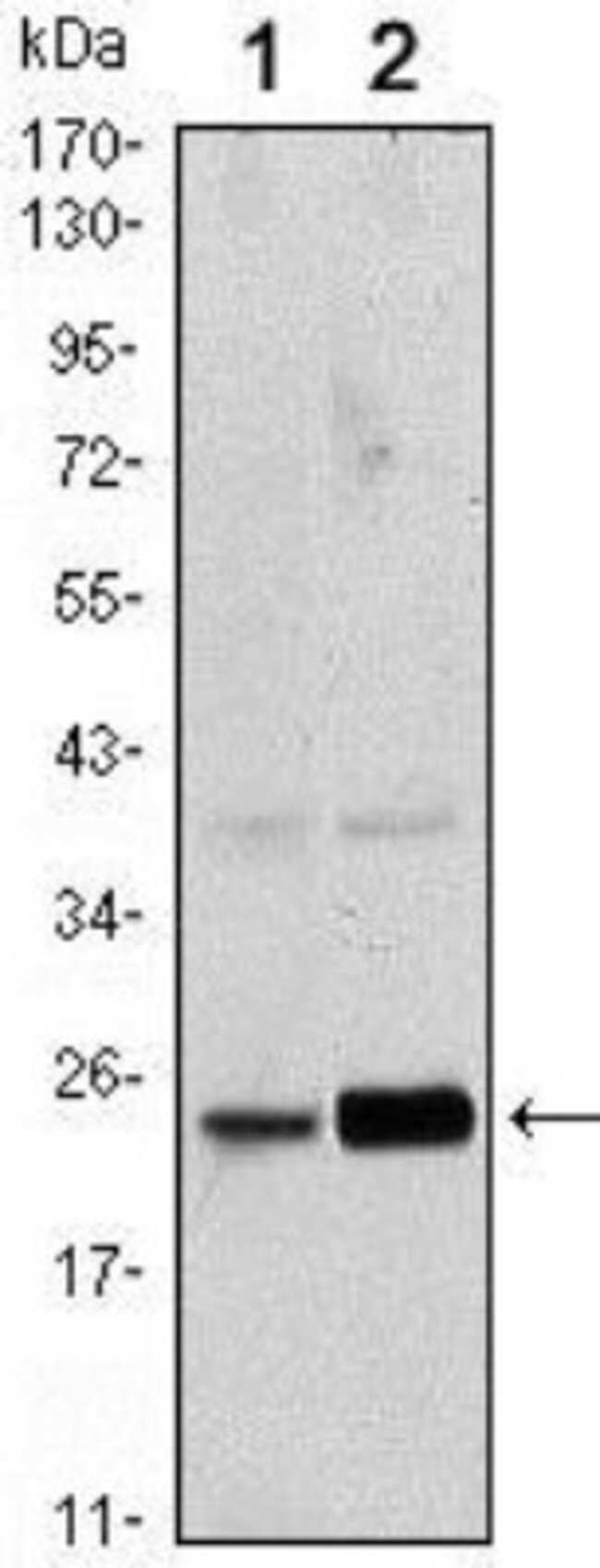anti-RAB10, Clone: 4E2, Novus Biologicals 0.1mL; Unlabeled:Life Sciences