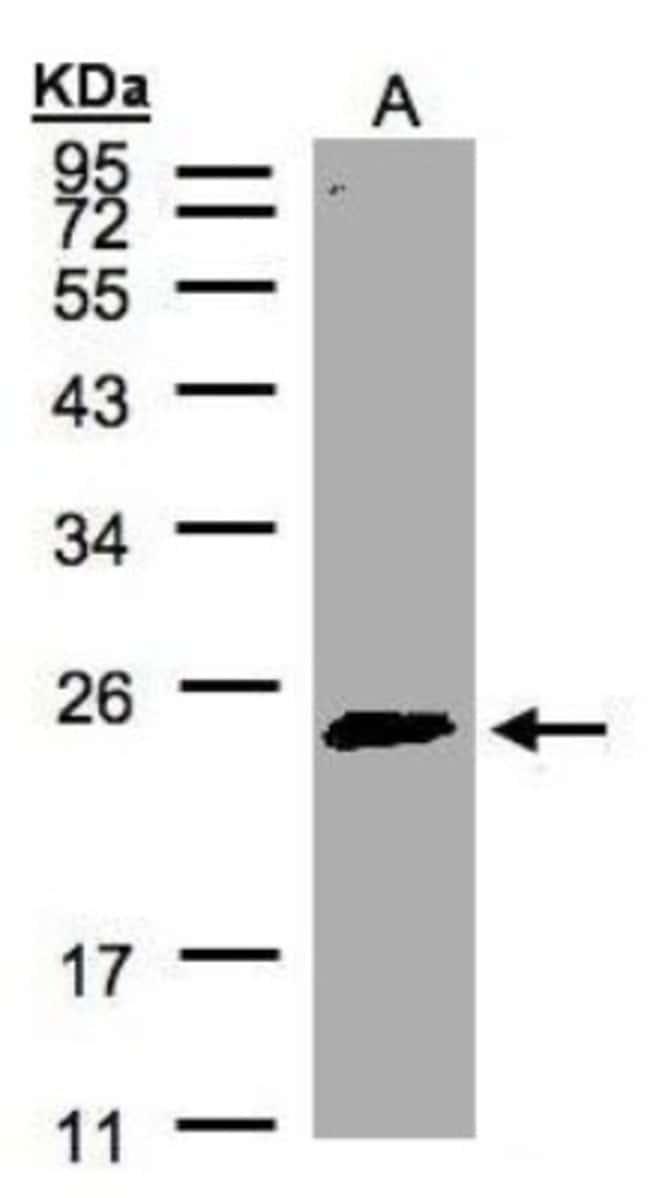 anti-Rab2, Polyclonal, Novus Biologicals 0.1mL; Unlabeled:Life Sciences