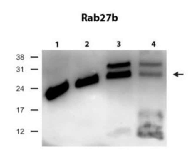 RAB27B Rabbit anti-Human, Mouse, Polyclonal, Novus Biologicals 100µL;